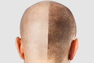 Hair Transplant Alternative to Treat Hair Loss