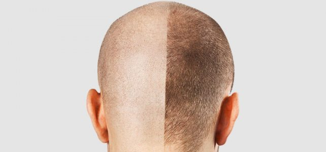 Hair Transplant Alternative to Treat Hair Loss