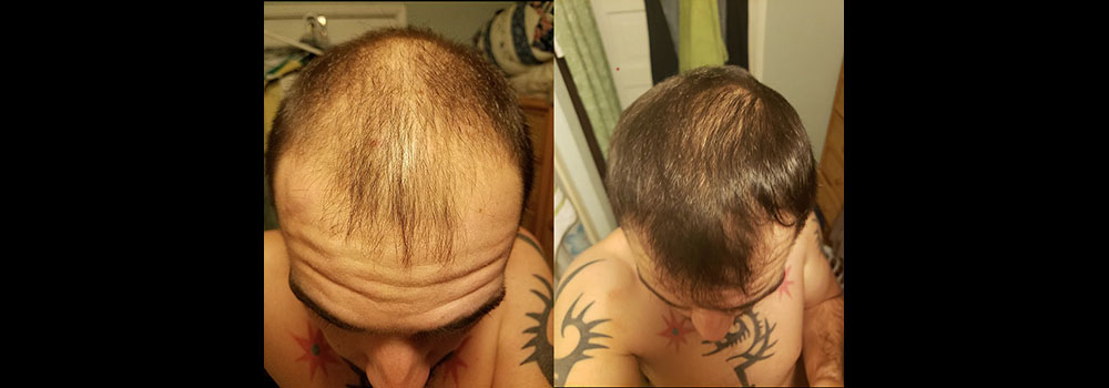 Morr F Before and After Results